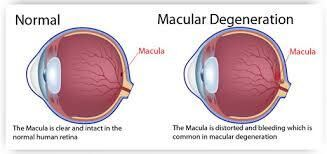 Reading with Macular Degeneration